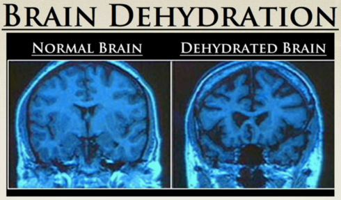 DEHYDRATION AND MORE SODIUM INTAKE CAN CAUSE SEIZURES