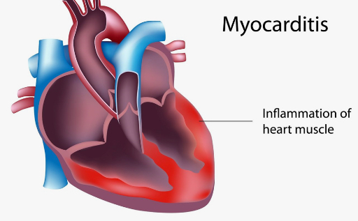 COVID-19 CAUSES LONG TERM HEART DAMAGE