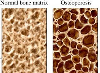 HOW TO STOP OSTEOPOROSIS