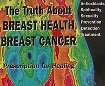 EARLY BREAST CANCER – HORMONE TREATMENT AS GOOD OR BETTER THAN CHEMOTHERAPY